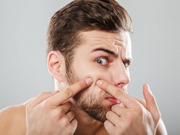 Why Does Your Face Keep Breaking Out?