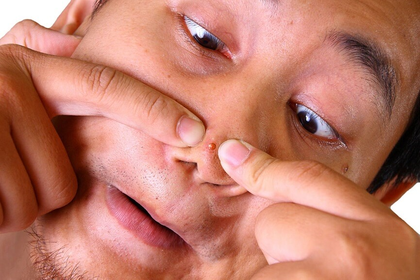 Man popping his nose acne